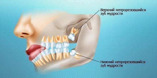 canalul dinților poate provoca pierderea în greutate cum să pierdeți greutatea la 145 de lire sterline