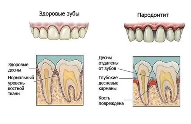 decizia dinților provoacă pierderea în greutate)