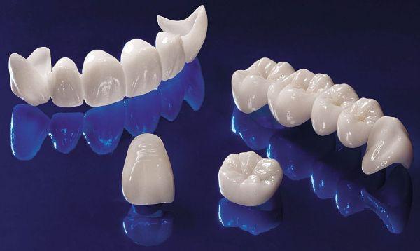 چگونه جایگزین دندان از دست رفته