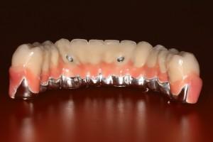 چه چیزی باعث می شود پلاگین دندان
