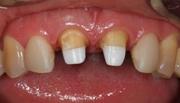 Что такое микропротезирование зубов виды этапы преимущества