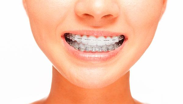Как работают брекеты? Как быстро двигаются зубы в брекетах.