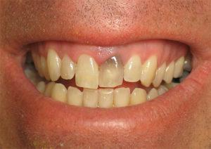 Зуб почернел изнутри - 32Дента