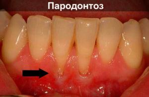Опущение десен как поднять – Здоровье полости рта