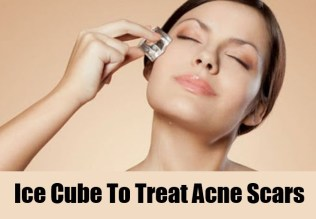 home remedies for acne 09