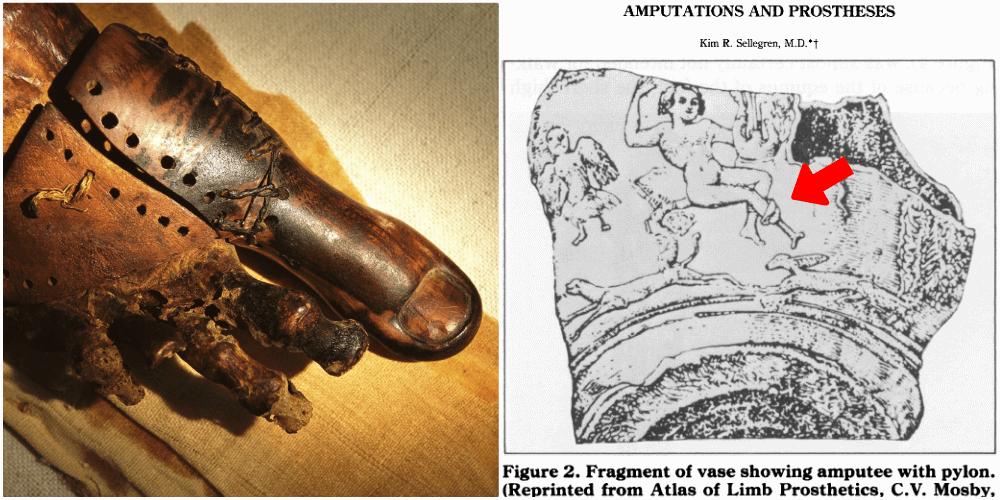 protesi protesi antiche protesi romane