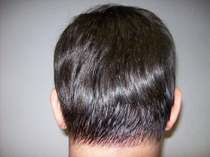 Frisuren Für Einen Flachen Hinterkopf Frisur Frisur