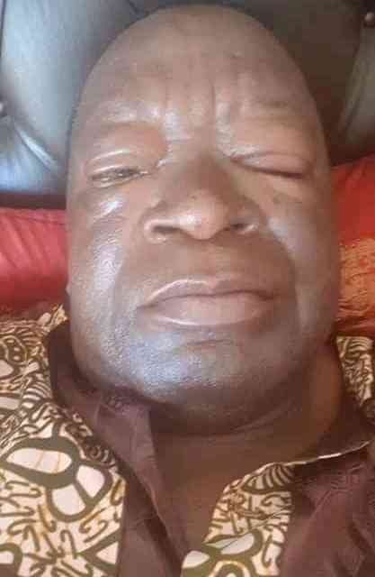 LATEST PICTURES: Victor Matemadanda poisoned at Zanu PF meeting, Ill in hospital….DETAILS