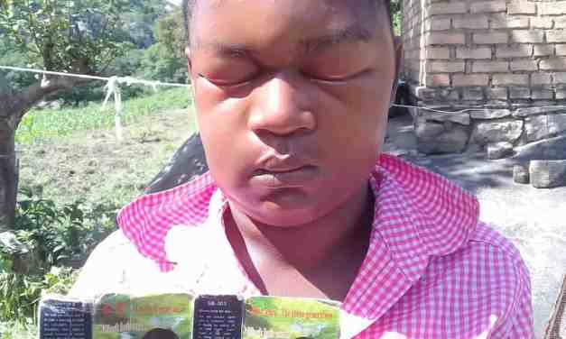 Zimbabwean woman goes blind after using Chinese-made hair dye….PICTURES