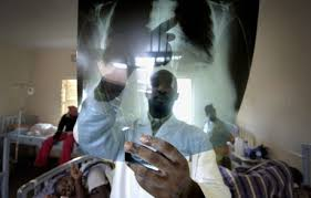 TB claims 4 000 lives daily