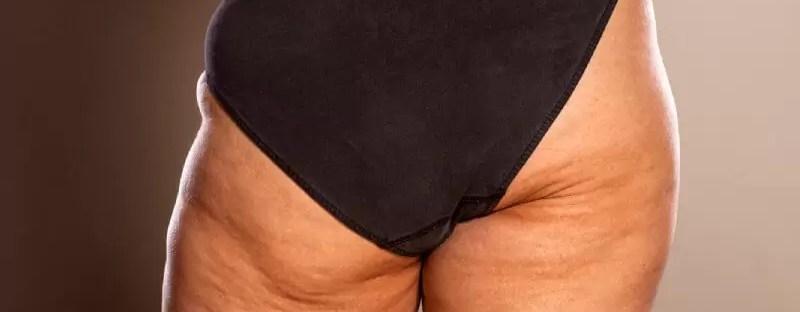 Cellulit, a cellulitis.