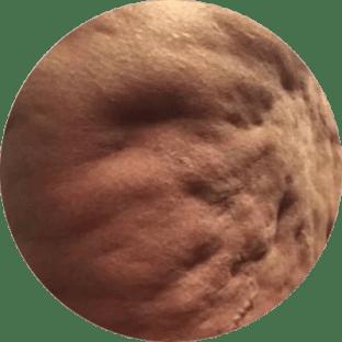 Redukowanie cellulitu