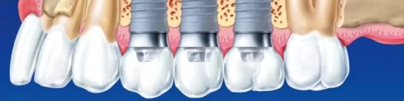 Implanty zębowe