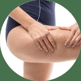 Skuteczne sposoby na cellulit