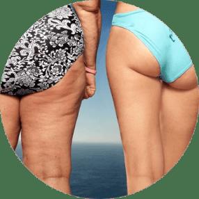 Skuteczne zwalczanie cellulitu
