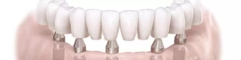 Szczęka z implantami zębowymi