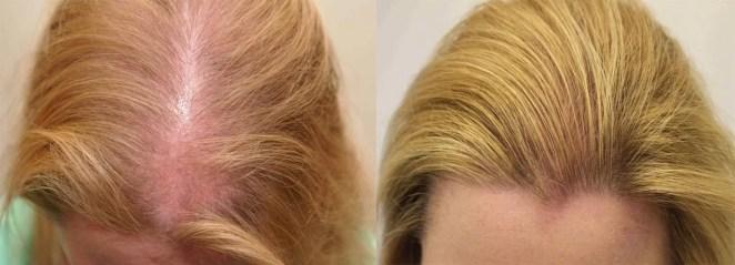 وصفة زيت جوز الهند لعلاج فراغات الشعر