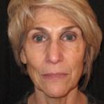 Cosmetic Acupuncture Tucson