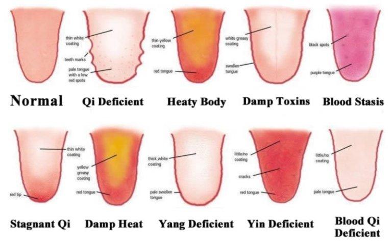 tongue diagnosis chart